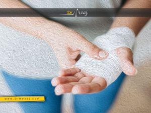 سوختگی پوست دست